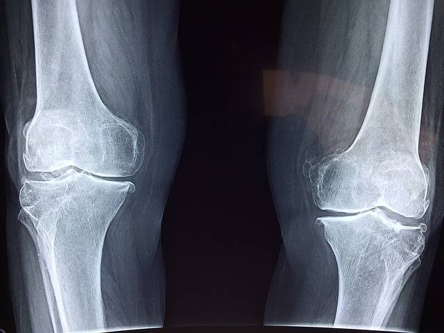 Knee X-Ray Medical - Free photo on Pixabay (395055)