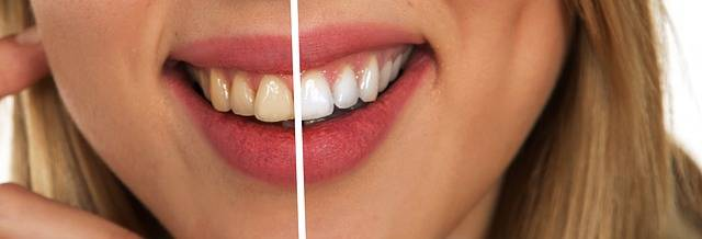 Tooth Dental Care White - Free image on Pixabay (693742)